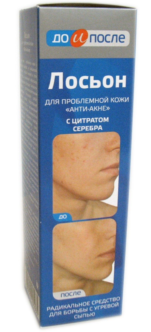 """Lotion Before and After """"Anti-Akne"""" 200 ml"""