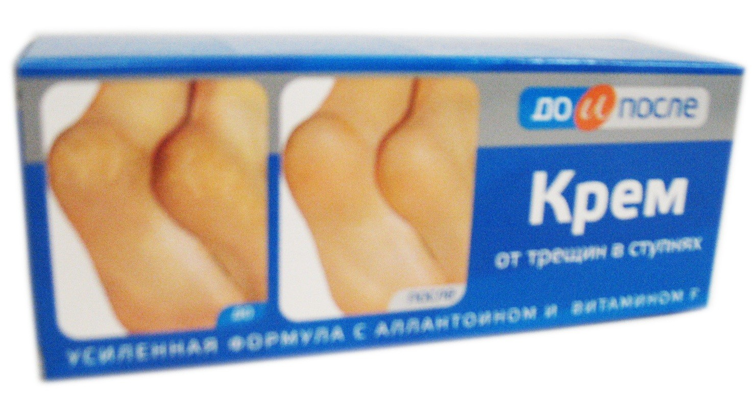 """Cream of the feet cracks """"Before and After"""" 50ml"""